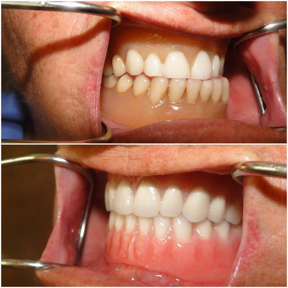 denture-before-after